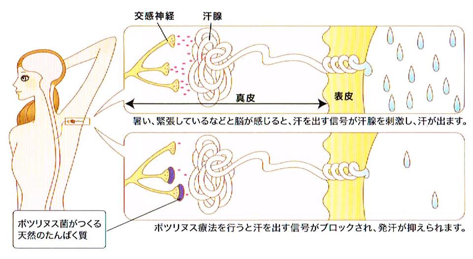 腋窩多汗症の治療方法