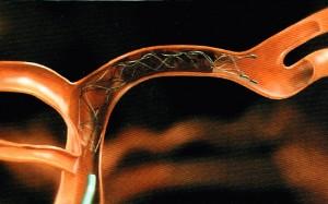 ステント型血栓回収デバイス