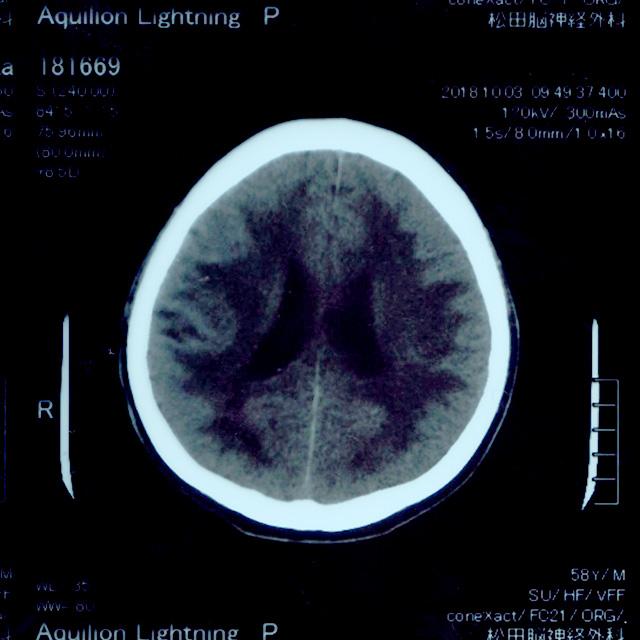 致命的にもなる「高血圧性脳症」