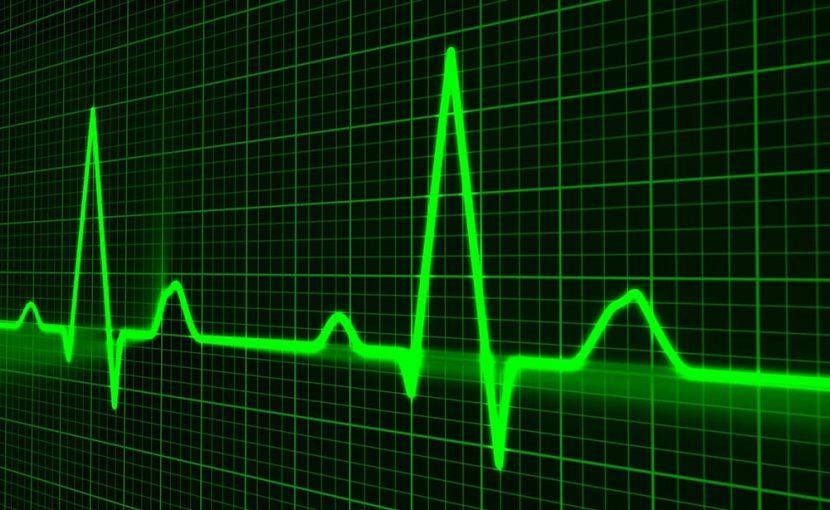 「心電図が異常です」と言われたら