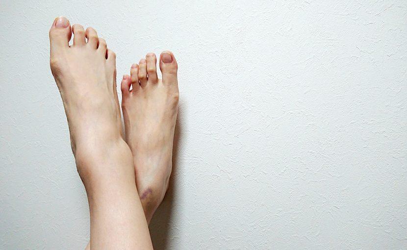むずむず脚症候群と睡眠障害